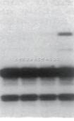 一站式DNA非变性PAGE电泳套装